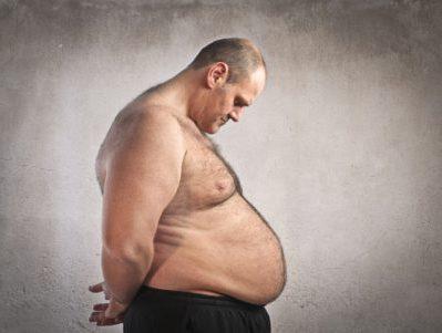 obese-gros-morbide-1-main-10571460